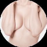 הגדלת שדיים